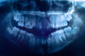 gracey-backer-oral-surgeons-risk-management